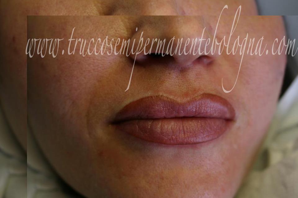 pigmentazione totale labbra